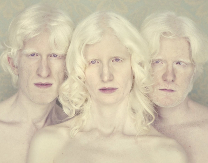 Albinos Project